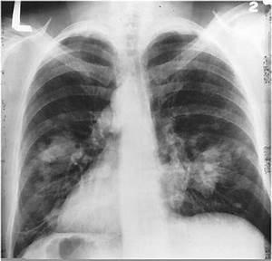 Pin on Excalibur Healthcare's Imaging & Teleradiology Pins  Pneumonia Asbestos