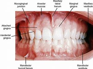 Image Gallery Mucogingival Fold