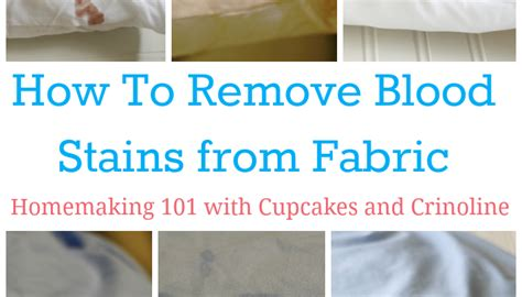 How To Remove Blood Stains From Upholstery by Shabby Chic Jar