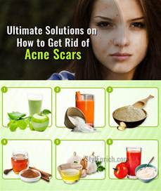 how to get rid of cat acne how to get rid of acne naturally html autos weblog