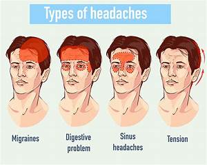 cluster headache location chart headache locations types of headaches