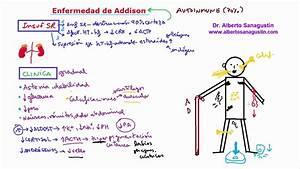 Enfermedad de Addison: memoriza la clínica