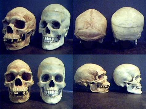 Can You Tell A Person's Race From Their Skull?