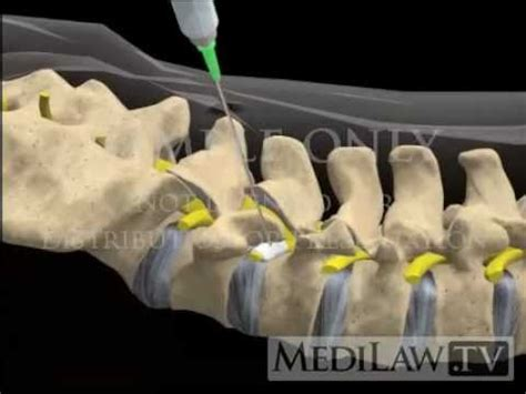 lumbar spine selective nerve root block injection pain