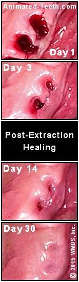 The wisdom teeth removal recovery being extremely painful. Pictures showing progress of tooth extraction site healing ...