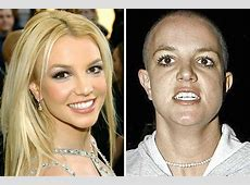 20 Shocking Photos Of Celebrities Before And After Drugs