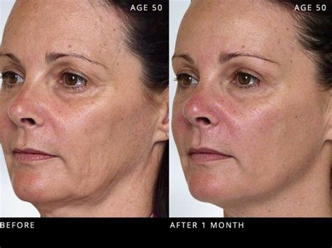 Look Youthful With Sculptra, Facial Injection, Sculptra