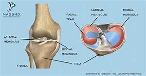 How Meniscus Tears Affect Athletic Performance