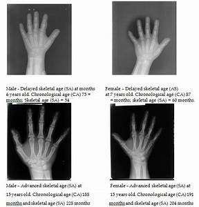 Angular Charts Skeletal Age Of Down Syndrome Individuals Intechopen