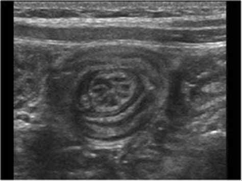 March 2009 | Ultrasound Cases