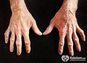 Лечение синдрома рейно при гипертонии