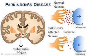 Parkinson's Disease - Legacy Spine & Neurological Specialists