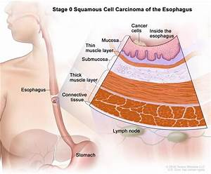 Definition Of Stage 0 Esophageal Carcinoma In Situ