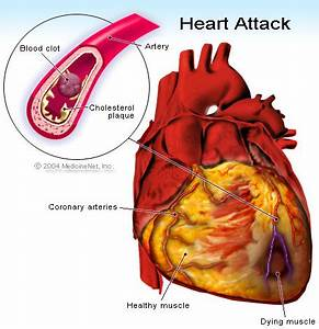 heart attack pain relief
