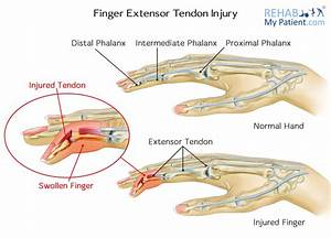 Finger Extensor Tendon Injury | Rehab My Patient