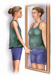 Stock Illustration - Medical illustration of anorexia ...