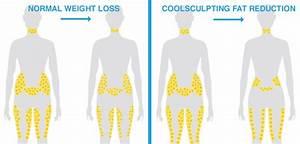 5 Reasons Coolsculpting Beats Dieting  U0026 Exercise