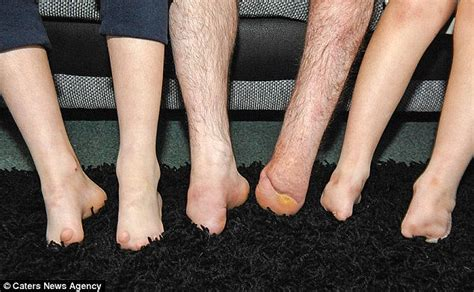 Kian And Callum Jarram Born With No Toes Get Their First