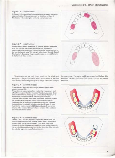 Modification De La Rã Munã Ration by A Unilateral Modification Is Used For A Clinical Guide To