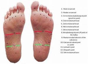 Cumulative Plantar Stress  Deeper Insight Into Healed And