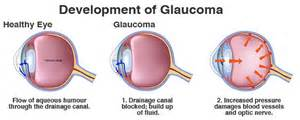 Glaucoma: Timely treatment must to prevent blindness  Glaucoma Eyes and Vision