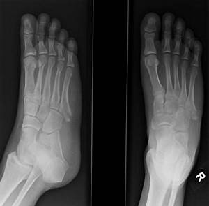 Avulsion fracture of the 5th metatarsal styloid | Image ...