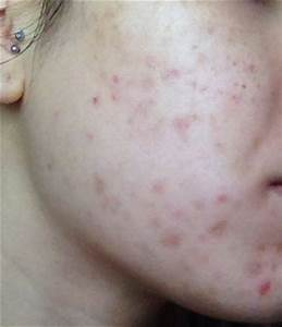 Sudden Adult Acne On Right Side Of Face - Adult acne ...