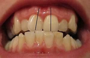 Dents Qui Se Déchaussent Photos : canines incluses orthodontiste qu bec ~ Medecine-chirurgie-esthetiques.com Avis de Voitures