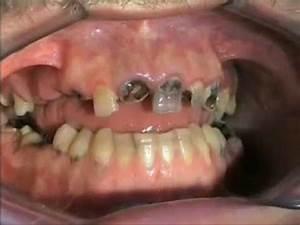 Dents Qui Se Déchaussent Photos : phobie dentaire youtube ~ Medecine-chirurgie-esthetiques.com Avis de Voitures