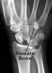 Hamate Bone Definition  Location  Anatomy  Function   U0026 Diagram