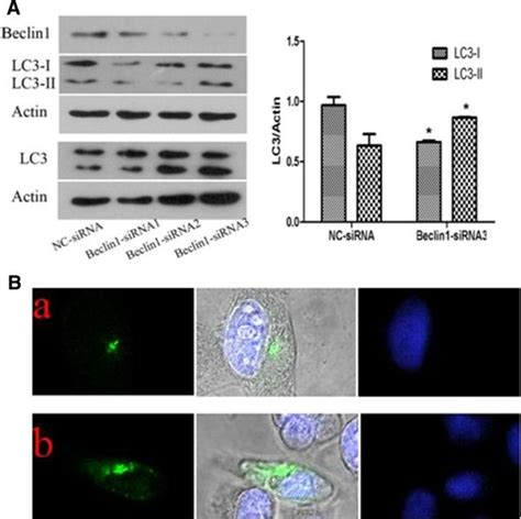 figure 2 autophagy inhibition increases beclin1 inhibition promotes autophagy and decreases gemcitabine induced apoptosis in miapaca2