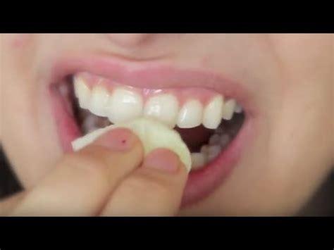 comment blanchir les dents naturellement blanchiment des dents a la maison avant apres