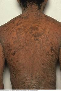 Ichthyosis Vulgaris - Symptoms And Causes