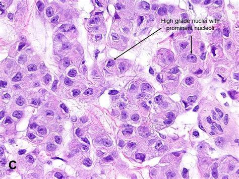 american urological association malignant mesothelioma mm