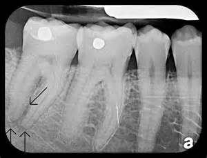 Tooth Abscess X-ray