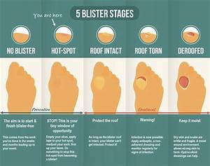 How To Fix Your Trail Running Blisters  U2014 Atra
