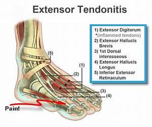 Extensor Hallucis Longus Injury Treatment