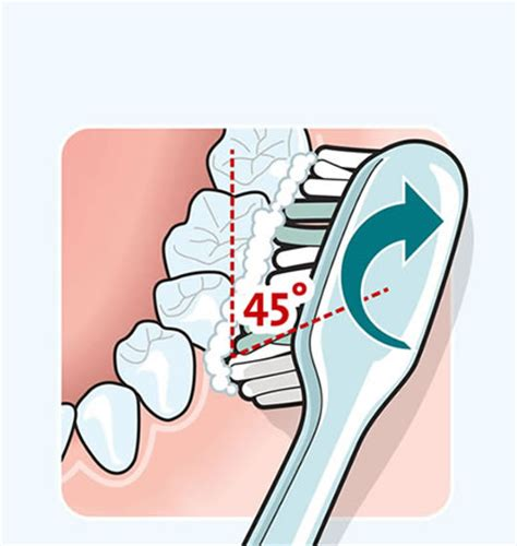 parodontitis bilder