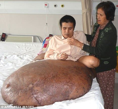 how do you allow a tumor to grow to 200 lbs