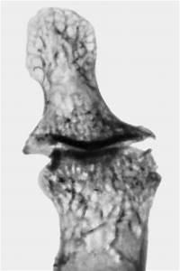 Шишки от шейного остеохондроза