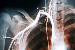 Thoracic outlet syndrome: A review - The Clinical Advisor