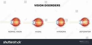 Eyesight Disorders Normal Eye Astigmatism Hyperopia Stock ...