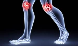 Arthralgia of the knee and hip joints code ICD10 causes symptoms and treatment