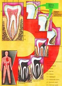 Озокерит при лечении простатита