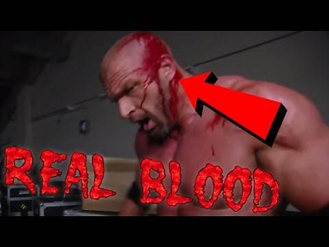 10 Current WWE Wrestlers Who Bled For Real (By Accident)