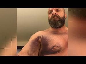 WWE Triple H - Surgical Update and Injury Report