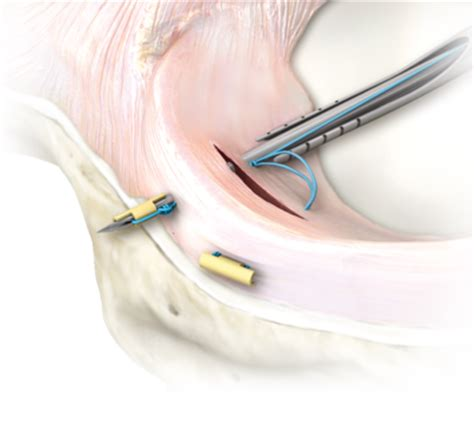 [pdf] All-Inside Arthroscopic Meniscal Repair With Meniscal Cinch.