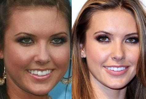 Audrina Patridge Before After
