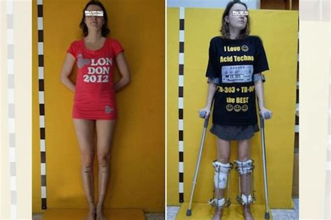 Can Surgery Make You Taller And Sticks That Make You Taller