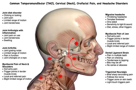 Can Tmj Cause Headaches And Neck Pain And Causes Of Headache After Menstruation